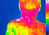 Thermal imaging of a back