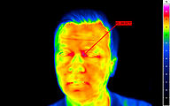 Thermography human medicine with VarioCAM® HDx head S
