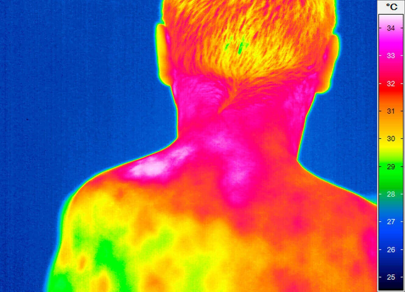 Thermography of a back