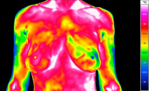 Thermal imaging of breasts